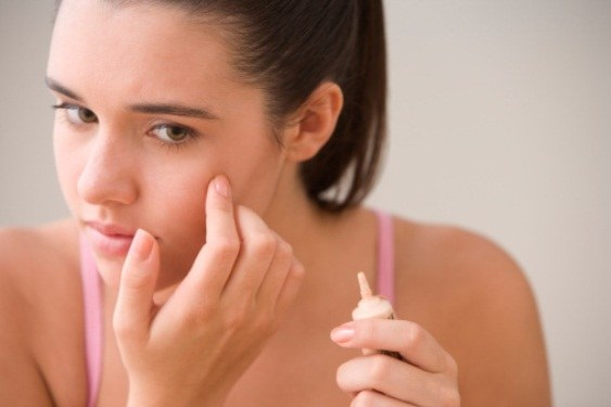How to get rid of sores after acne