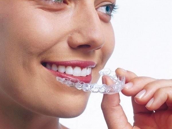 Как выпрямить передние зубы
