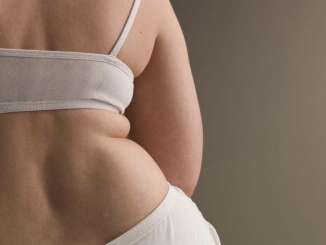 Как избавиться от жировых складок на спине