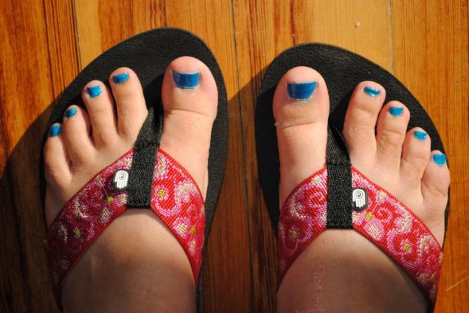 How to treat fungal nail disease