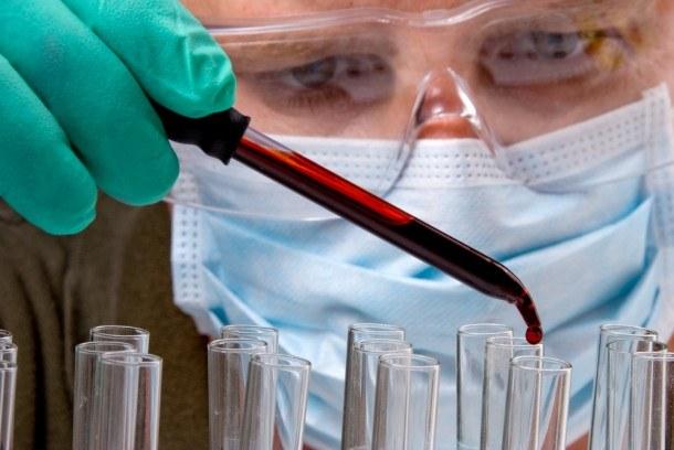 Как определить свертываемость крови