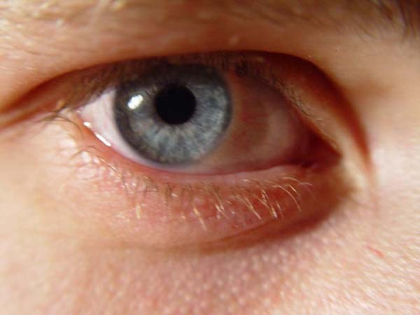 How to quickly get rid of a stye