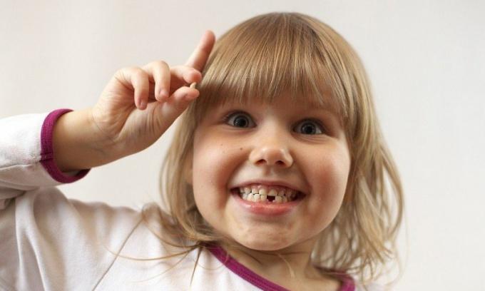 Как выдернуть молочный зуб