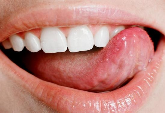 How to get rid of pimple on tongue