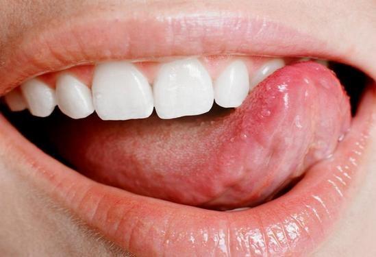 Как избавиться от прыща на языке