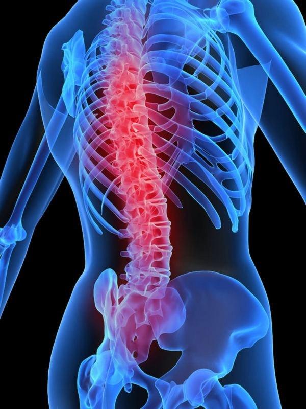 Как облегчить боль в спине