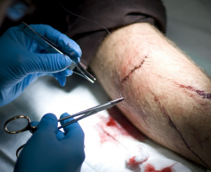 How to treat incised wound