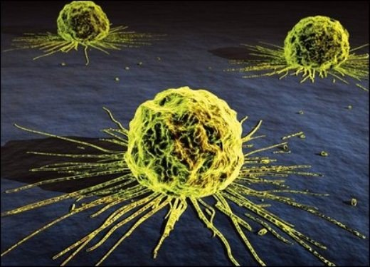 How to stop the growth of metastases