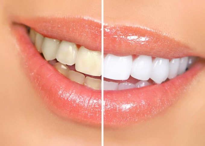 How to whiten your teeth in a week