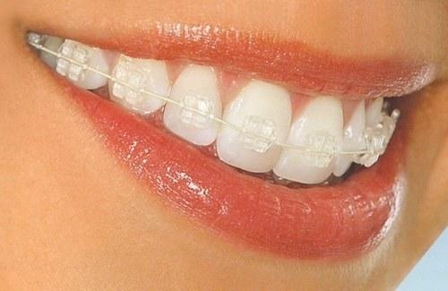 How to wear braces
