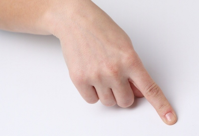 How to treat a bruised finger