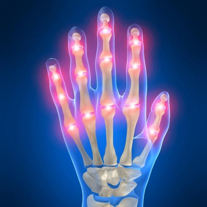 Как проводить профилактику артрита суставов
