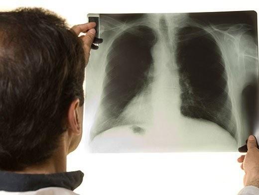 Как не заразиться туберкулезом