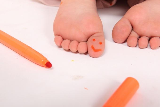 Причины и профилактика плоскостопия у детей