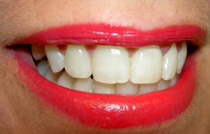 Как исправить неровные зубы