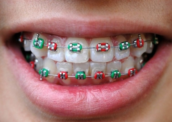 How much you need to wear braces