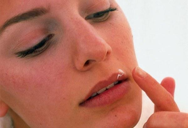 Чем нужно мазать простуду на губах