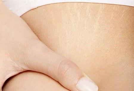 Советы по предотвращению растяжек после родов