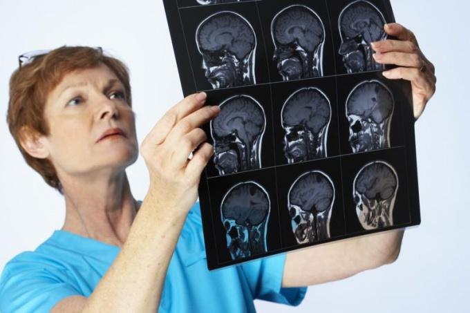Серозный менингит: признаки, лечение, итоги