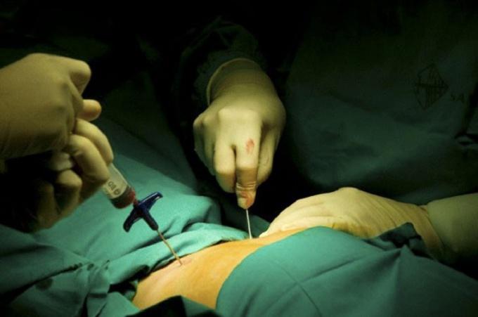 Опасна ли пункция костного мозга?