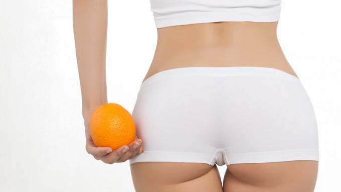 Ultrasonic liposuction will defeat cellulite