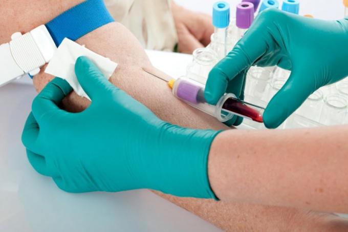 Для чего сдают анализ на онкомаркер са 19-9