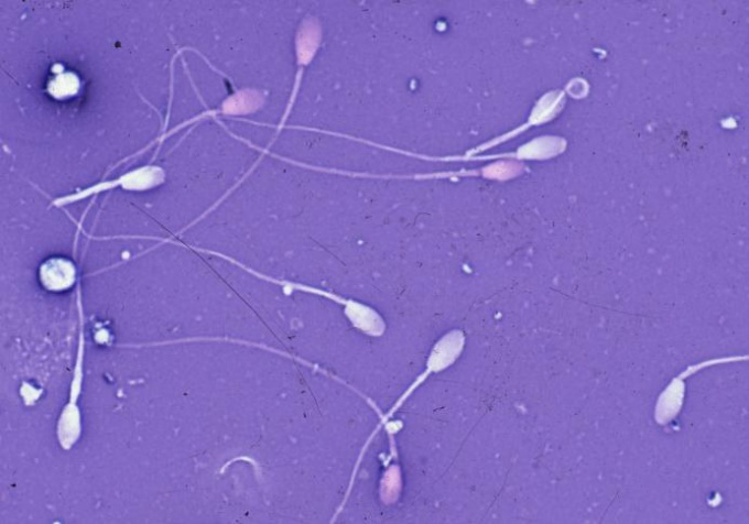Sperm is the reproductive mechanism of man.