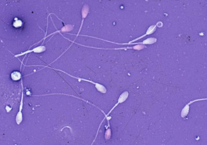 Сперма - это репродуктивный механизм мужчины.
