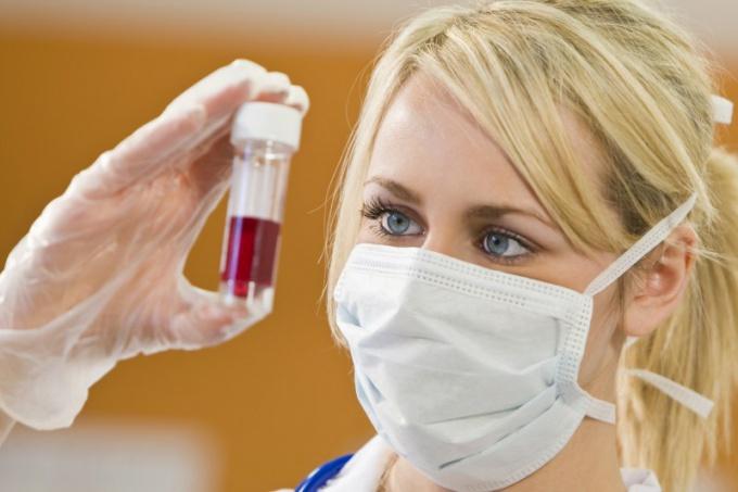 Когда изобретут лекарство от ВИЧ