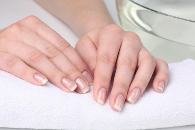 Why hands peeling skin