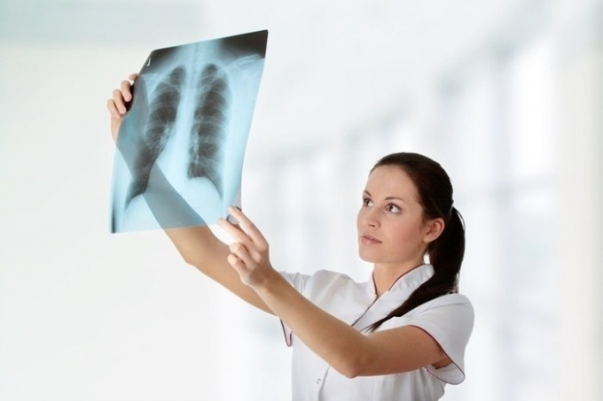 Is it possible to do x-rays during lactation
