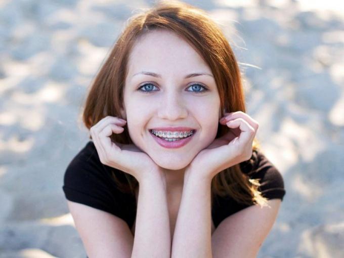 Скобы для выравнивая зубов помогут решить проблему сотен пдростков