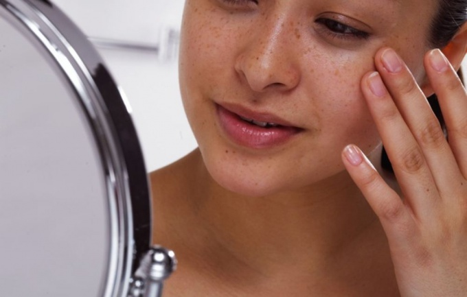 age spots causes