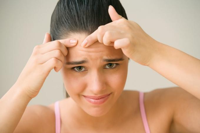 Проблема прыщей, акне и прочих несовершеств кожи лица