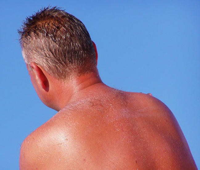 Strong how to treat a sunburn with swelling