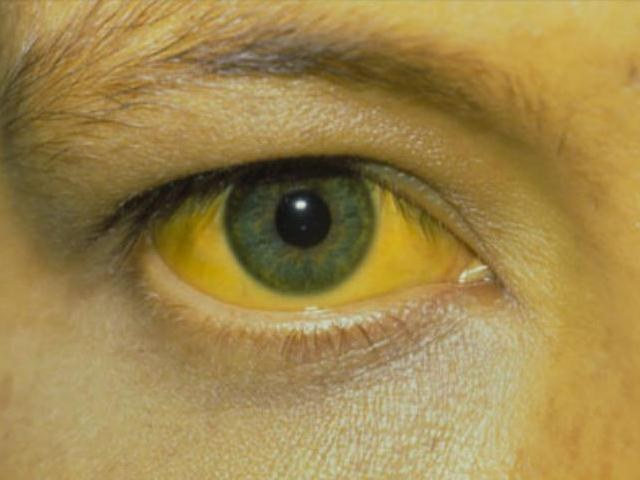 Какие признаки желтухи