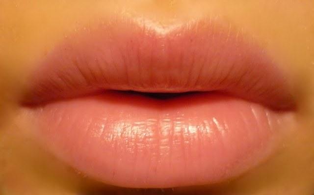 Как увеличить губы при помощи инъекций