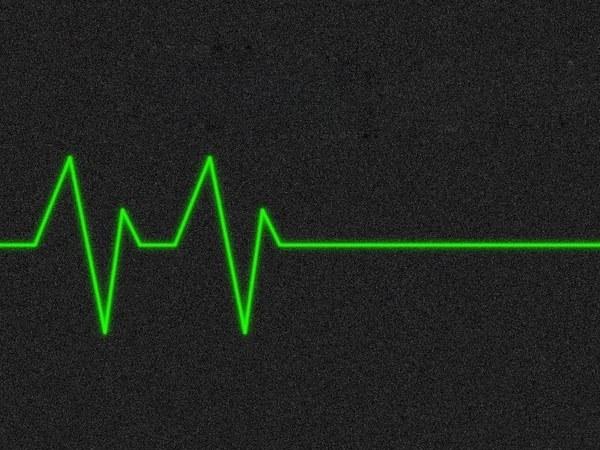 В чем отличие клинической смерти от комы