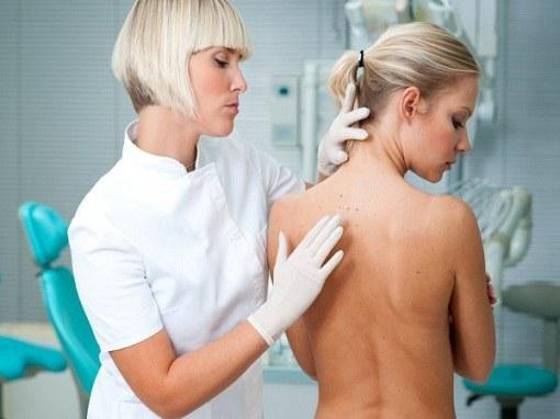 Любое видоизменение родинок может привести к раку кожи