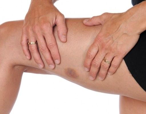 Почему появляются синяки на руках и ногах