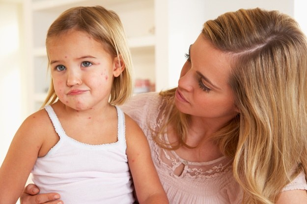 How long is the quarantine after chickenpox
