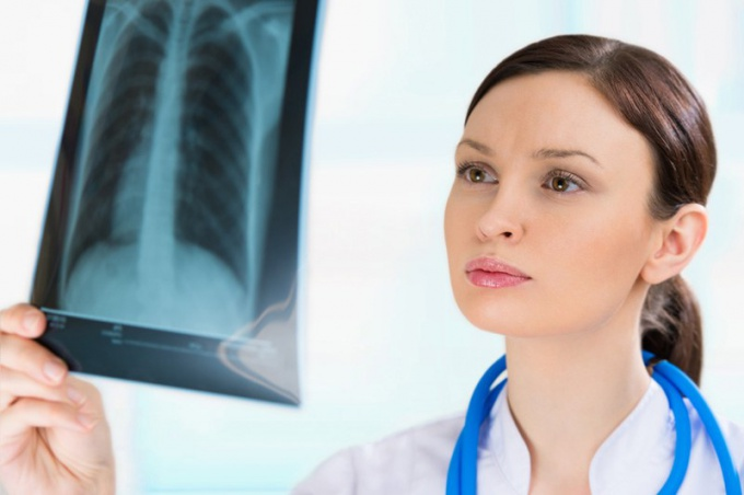 What is right lower lobe pneumonia