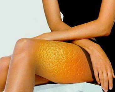 3 эффективных упражнения от целлюлита