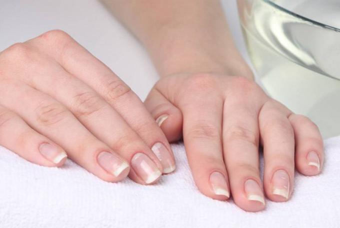 Как отбелить и укрепить ногти