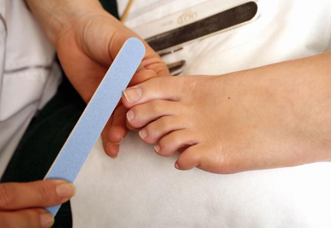 Вросший ноготь на ноге: причины и способы избавления