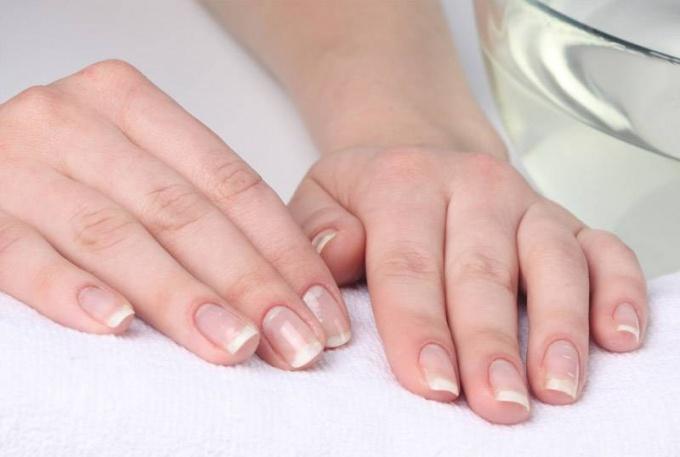 на коже рук появились мелкие, водянистые пузырьки