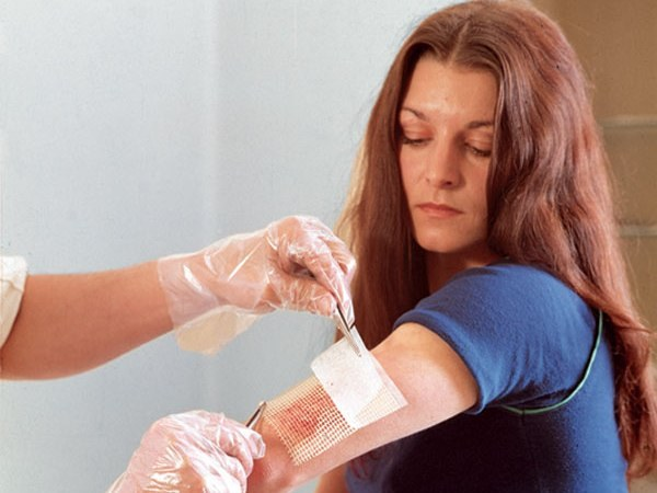 How to treat thermal burns of 2nd degree