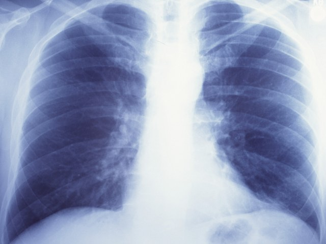 How to get rid of heaviness in the lungs
