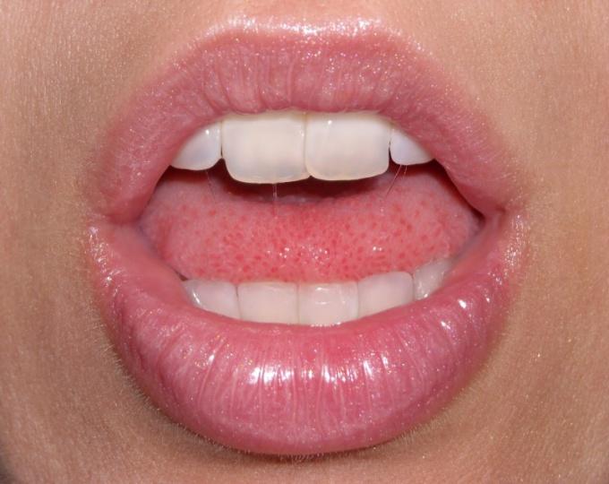 Соблюдение правил гигиены поможет избежать стоматита