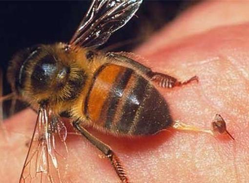Что будет, если не вытащить жало пчелы